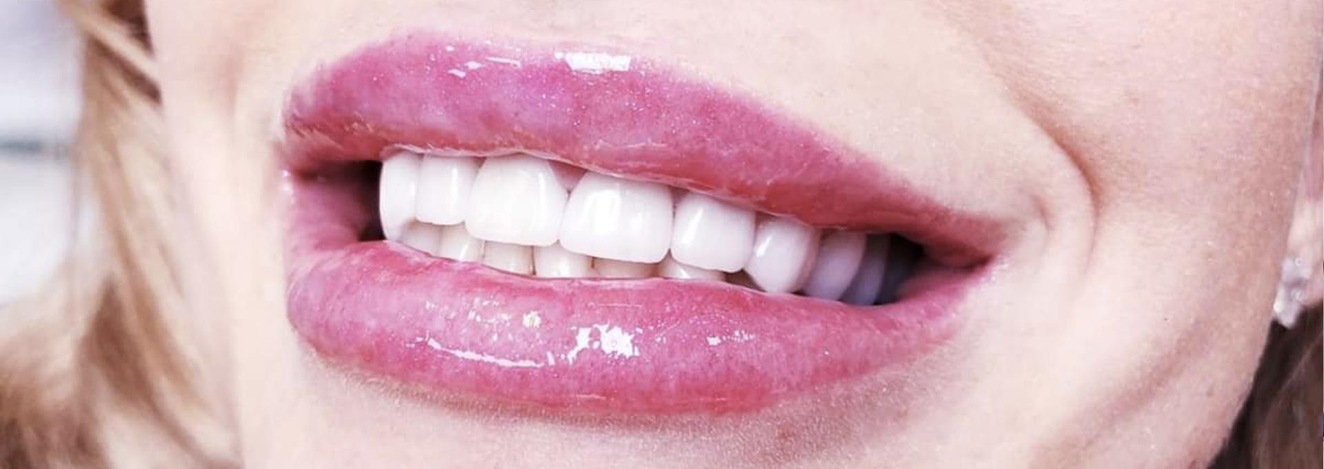 Ukážeme vám ako budú vyzerať vaše zuby